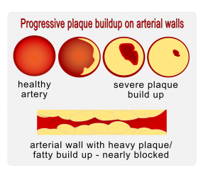 arterial plaque buildup fatty deposits on artery walls
