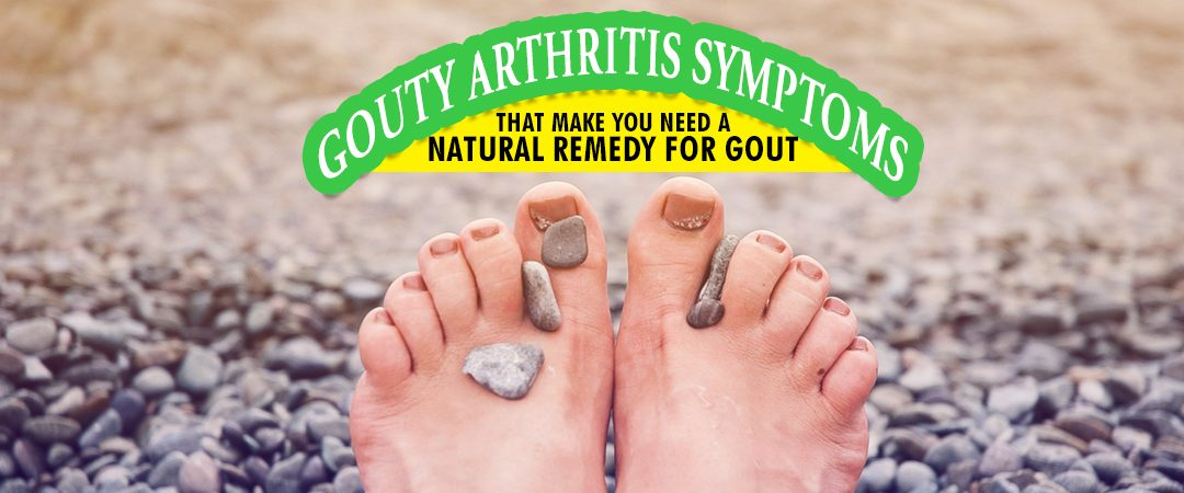 Gouty Arthritis Symptoms That Make You Need A Natural Remedy For Gout