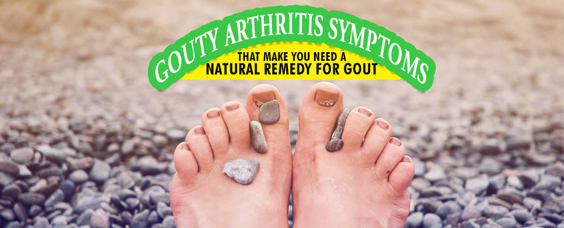 Natural Remedy for Gout | Whole Family Products